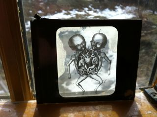 Antique 1800s Magic Lantern Glass Slide Medical Siamese Twins photo