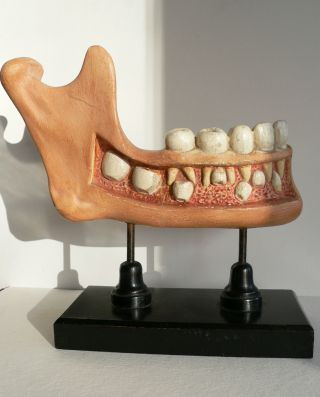 Antique Anotomical Model Of The Human Jaw.  19th Century.  Very Large.  Great Fun photo