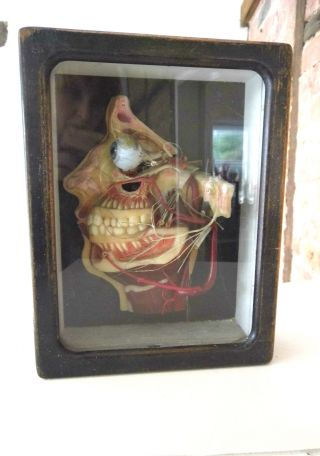 Antique German Wax Model Of The Dissected Head.  ' Lehrmittelwerke ' Circa 1910. photo