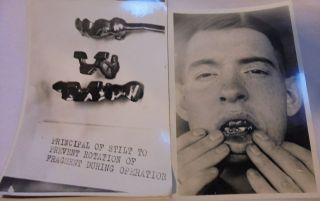 Antique Dental Photos Ww1 Soldiers Dental Repair And Prosthesis.  77 Prints 5